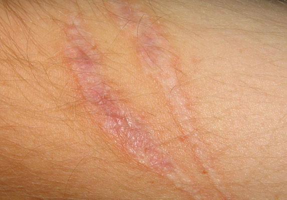 scars_on_arm