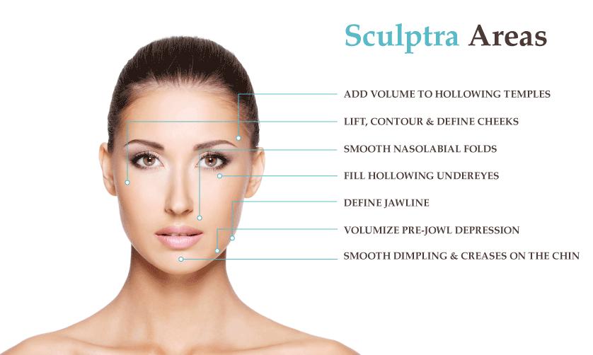 sculptra-face-map